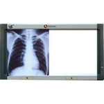 X-ray Viewer KXV-A101